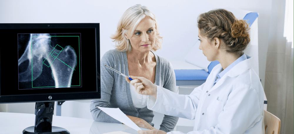 Osteoporoza: Tihi kradljivac kostiju